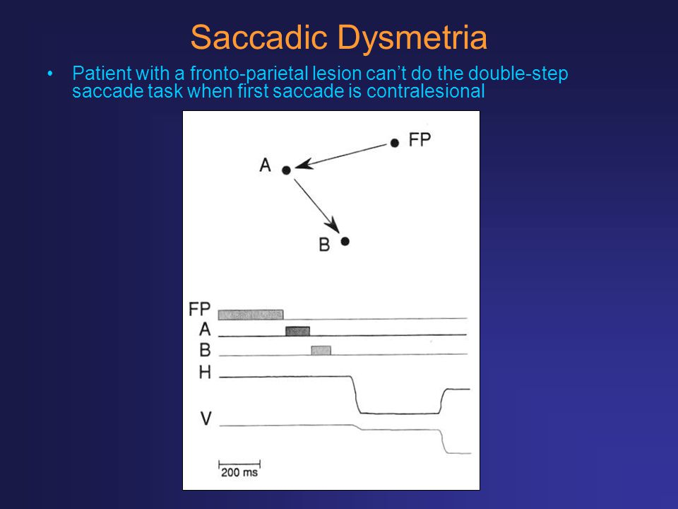 Saccadic Dysmetria Patient with a fronto-parietal lesion can't do the double-step saccade task when first saccade is contralesional.