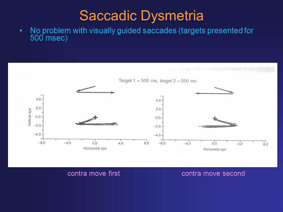 Saccadic Dysmetria No problem with visually guided saccades (targets presented for 500 msec) contra move first.