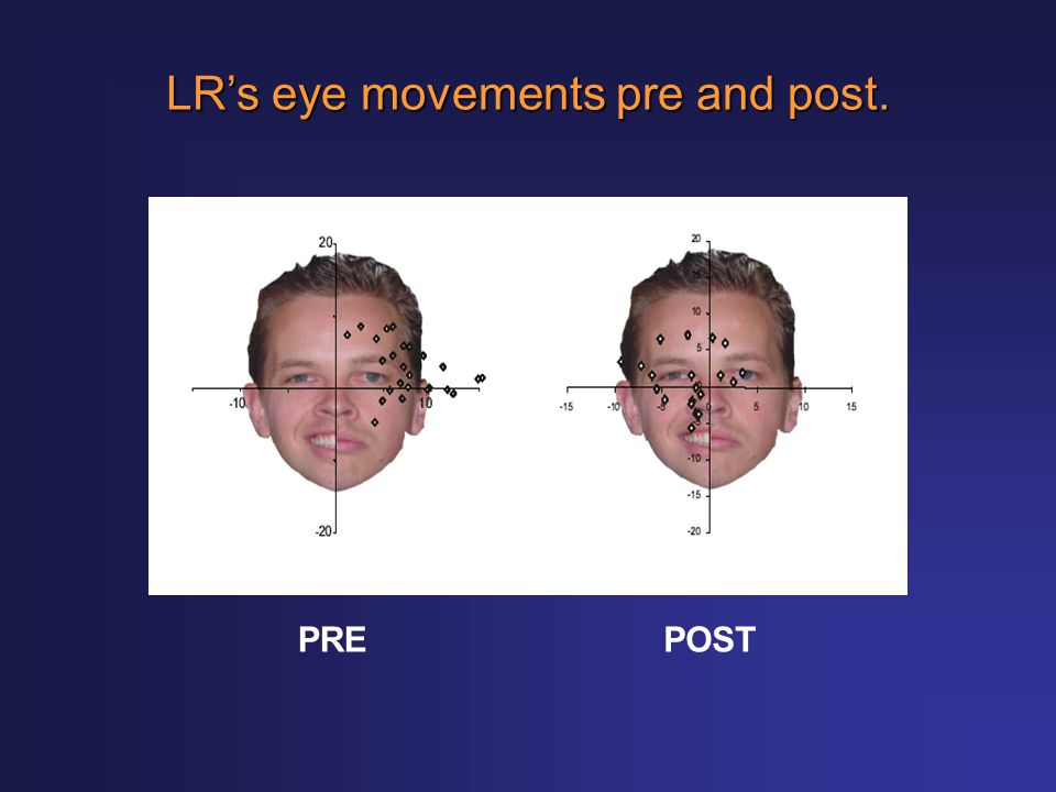 LR's eye movements pre and post.