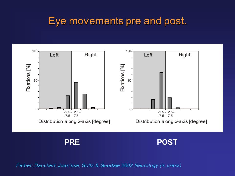 Eye movements pre and post.