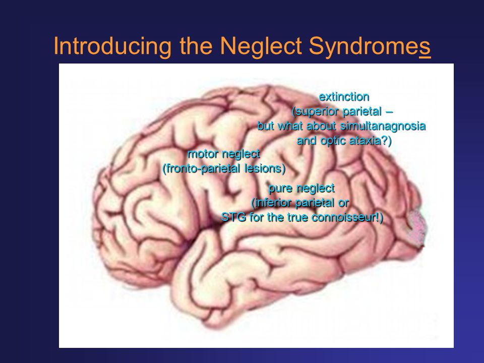 Introducing the Neglect Syndromes