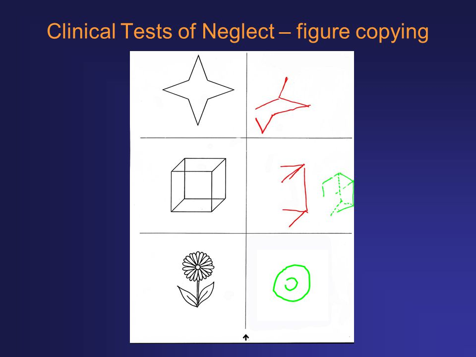 Clinical Tests of Neglect – figure copying