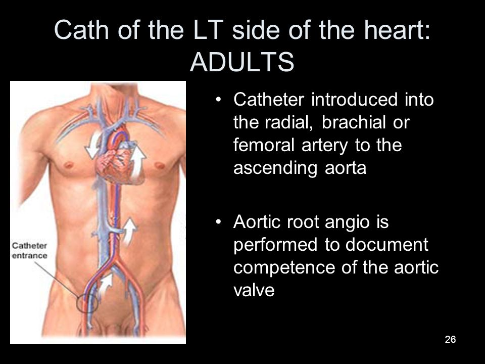 Cath of the LT side of the heart: ADULTS