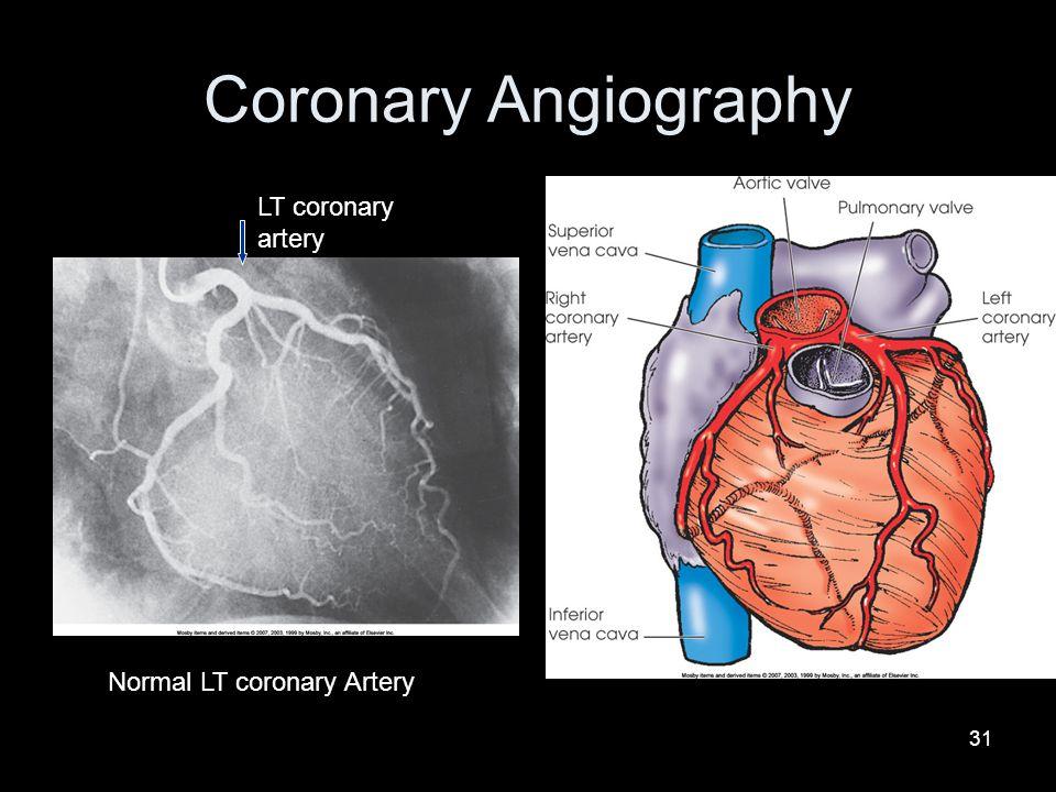 Coronary Angiography LT coronary artery Normal LT coronary Artery