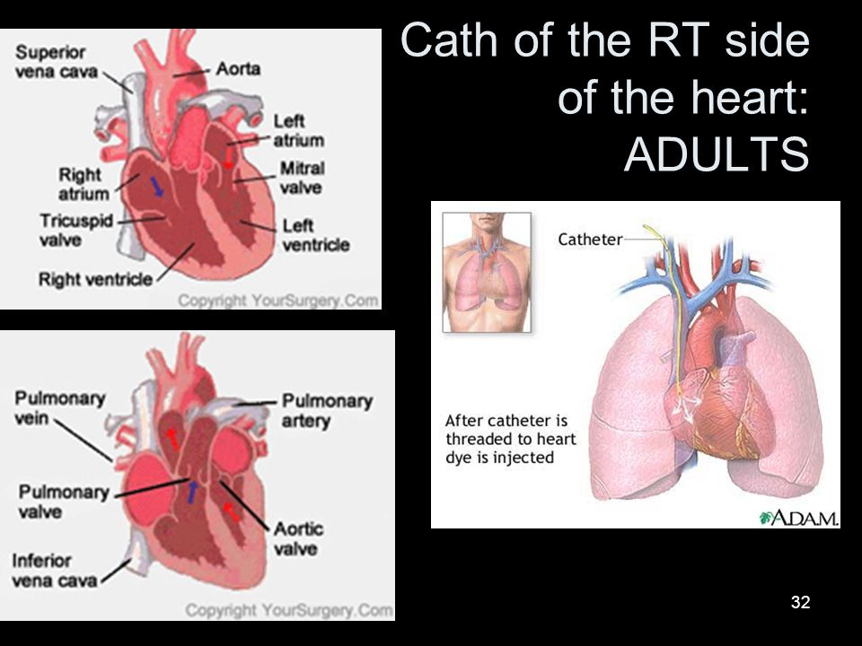 Cath of the RT side of the heart: ADULTS