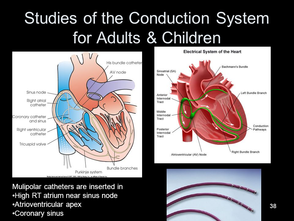 Studies of the Conduction System for Adults & Children
