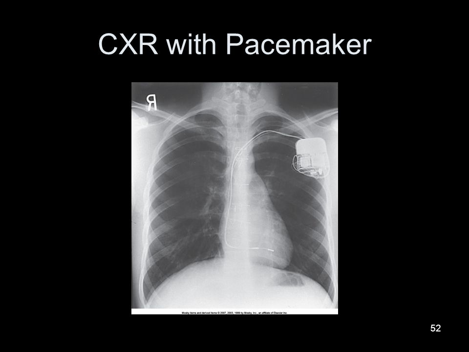 CXR with Pacemaker