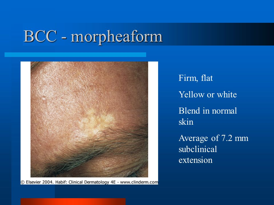 BCC - morpheaform Firm, flat Yellow or white Blend in normal skin