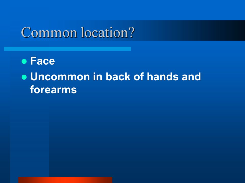 Common location Face Uncommon in back of hands and forearms