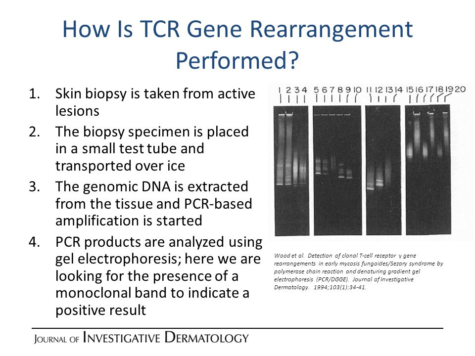 How Is TCR Gene Rearrangement Performed