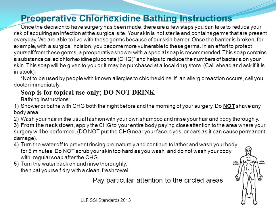 Preoperative Chlorhexidine Bathing Instructions