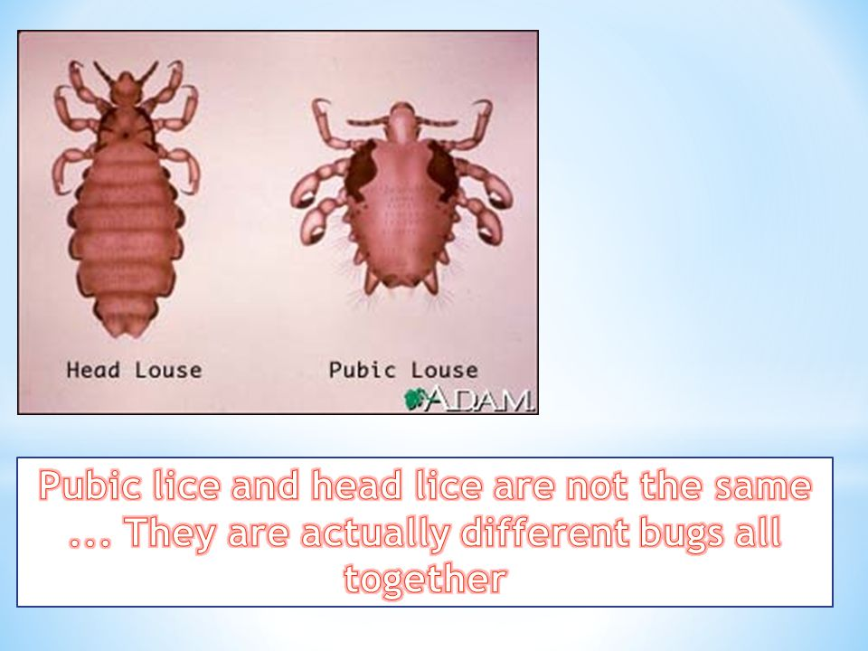 Pubic lice and head lice are not the same