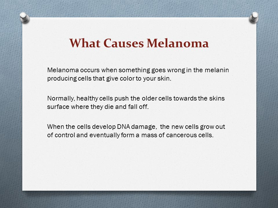 What Causes Melanoma
