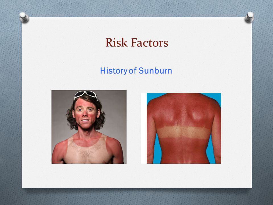Risk Factors History of Sunburn