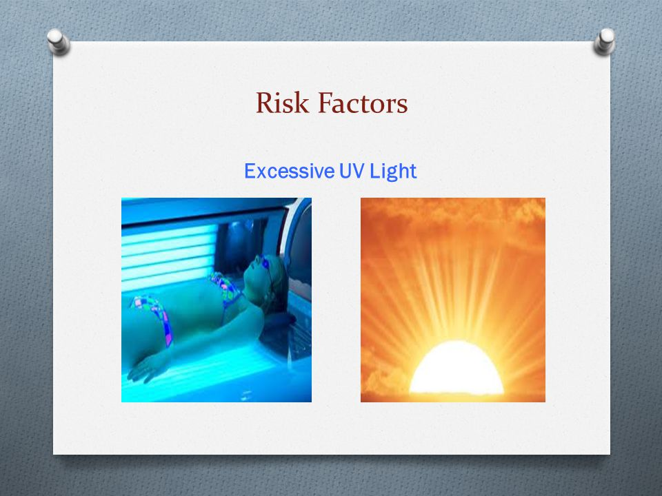 Risk Factors Excessive UV Light