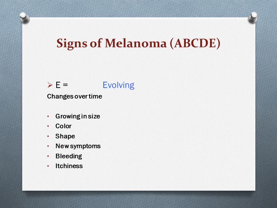 Signs of Melanoma (ABCDE)