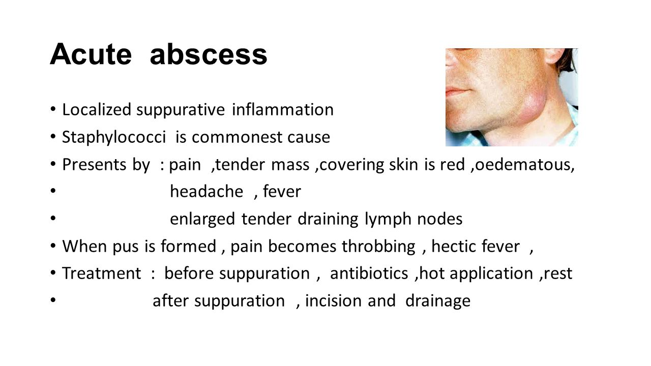 Acute abscess Localized suppurative inflammation