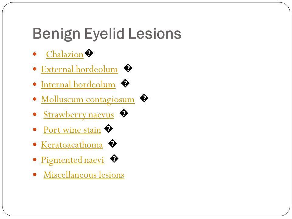 Benign Eyelid Lesions Chalazion� External hordeolum �