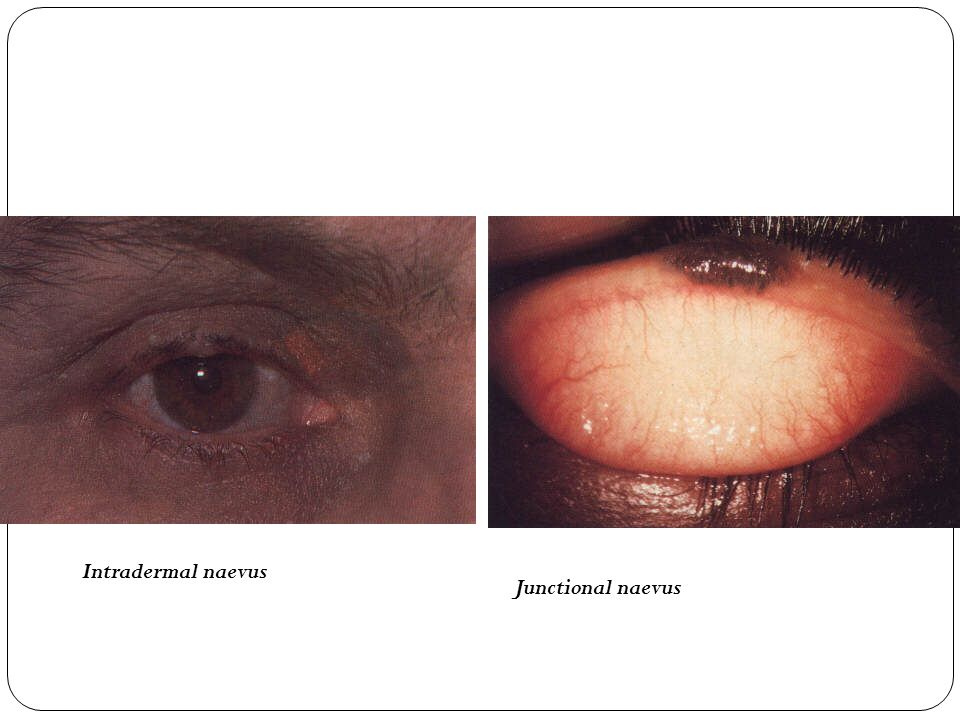 Intradermal naevus Junctional naevus