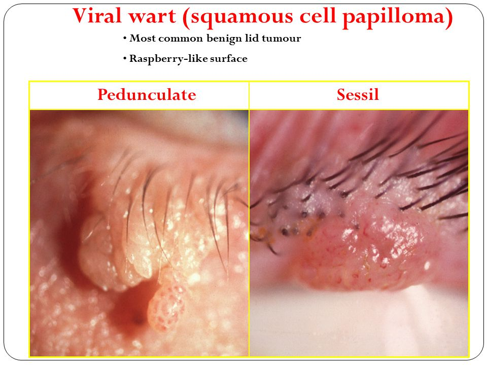 Viral wart (squamous cell papilloma)