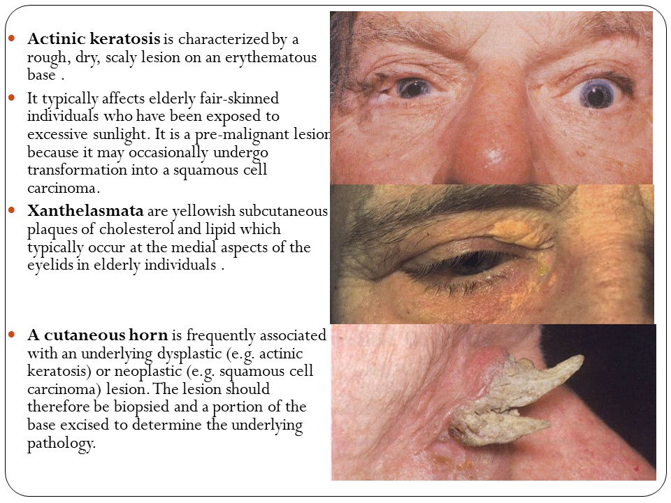 Actinic keratosis is characterized by a rough, dry, scaly lesion on an erythematous base .