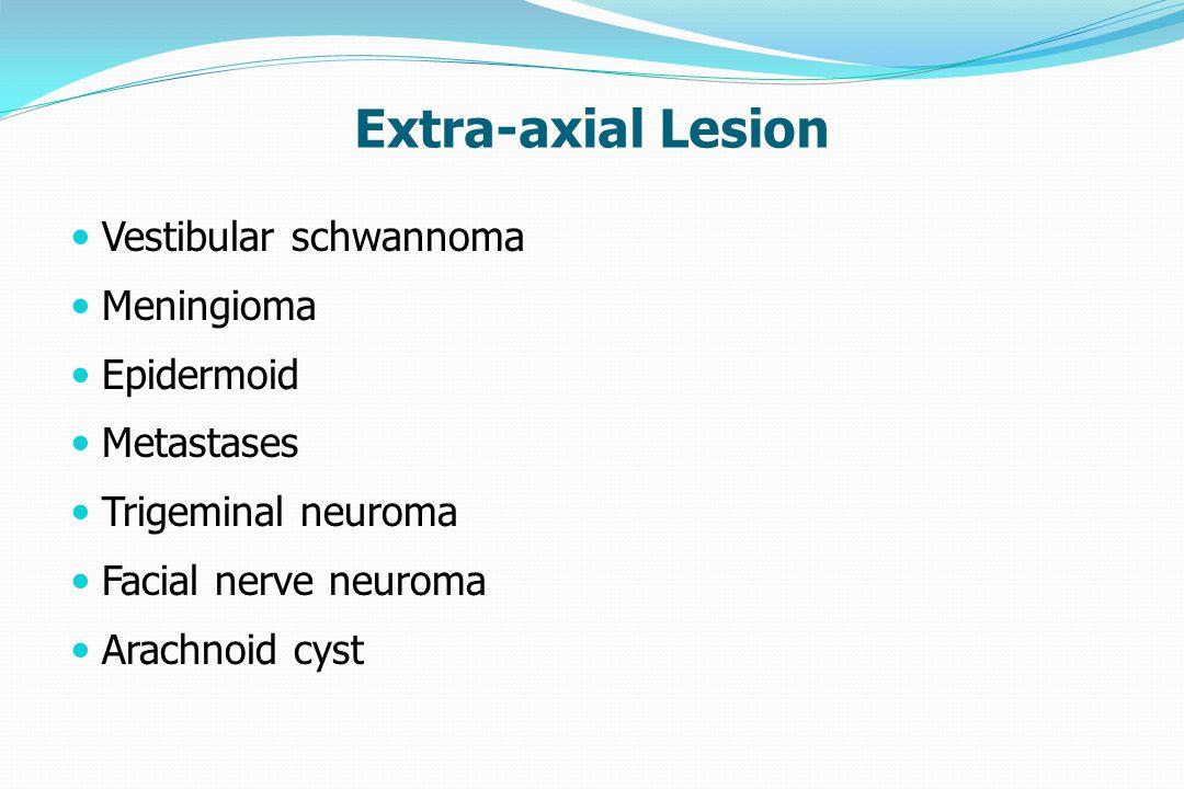 Extra-axial Lesion Vestibular schwannoma Meningioma Epidermoid
