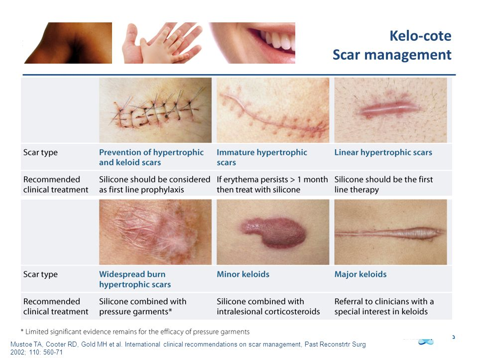 Kelo-cote Scar management