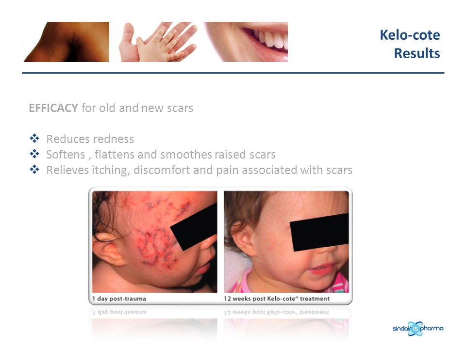 Kelo-cote Results EFFICACY for old and new scars Reduces redness