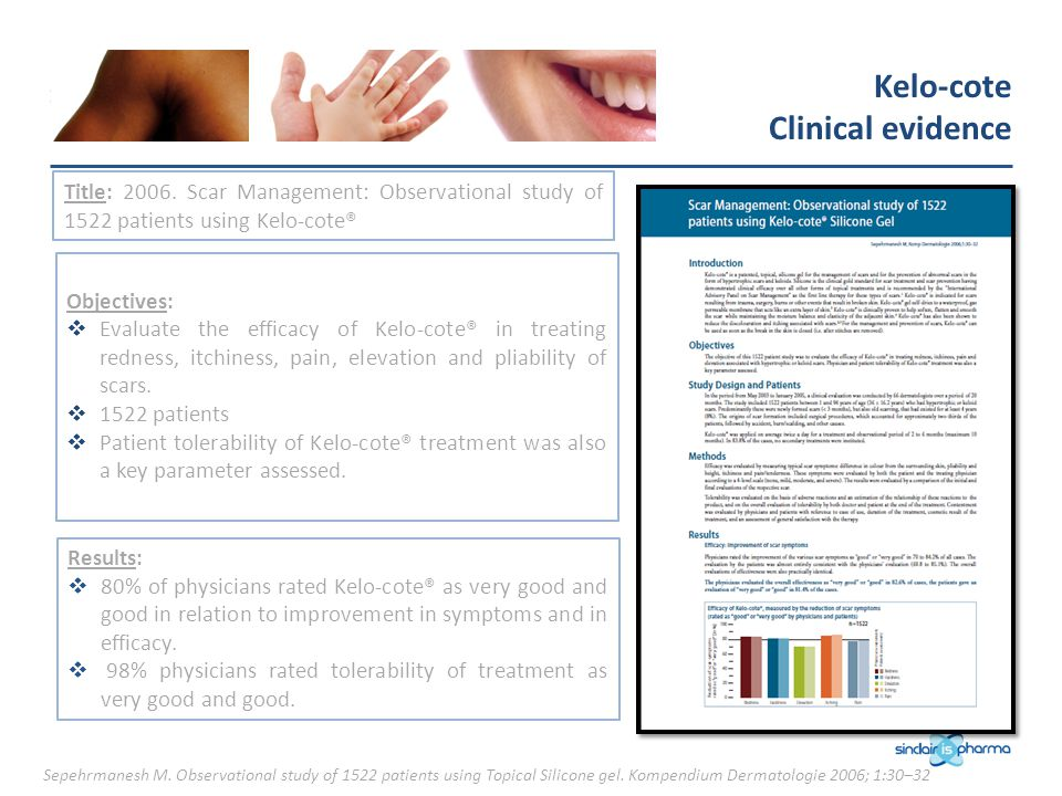 Kelo-cote Clinical evidence