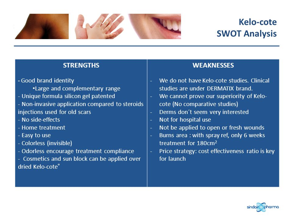 Kelo-cote SWOT Analysis