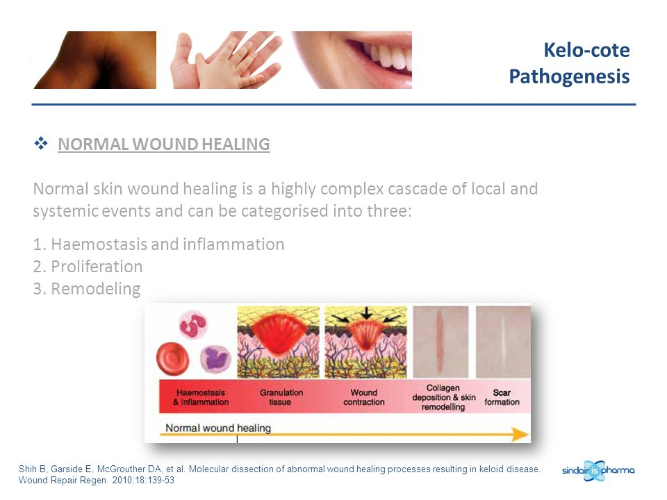 Kelo-cote Pathogenesis NORMAL WOUND HEALING