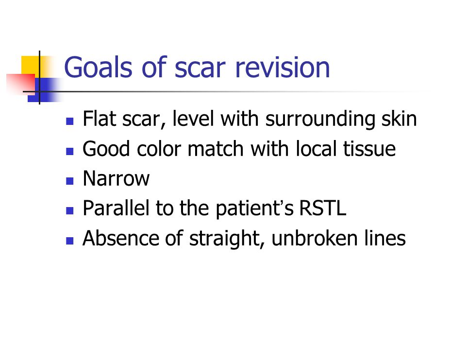 Goals of scar revision Flat scar, level with surrounding skin