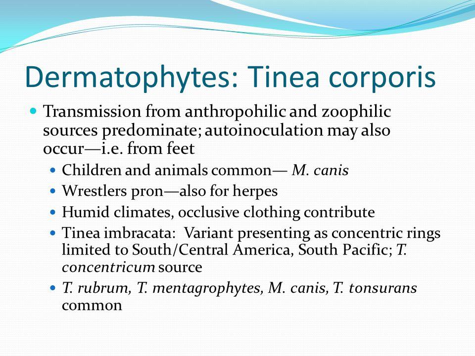 Dermatophytes: Tinea corporis