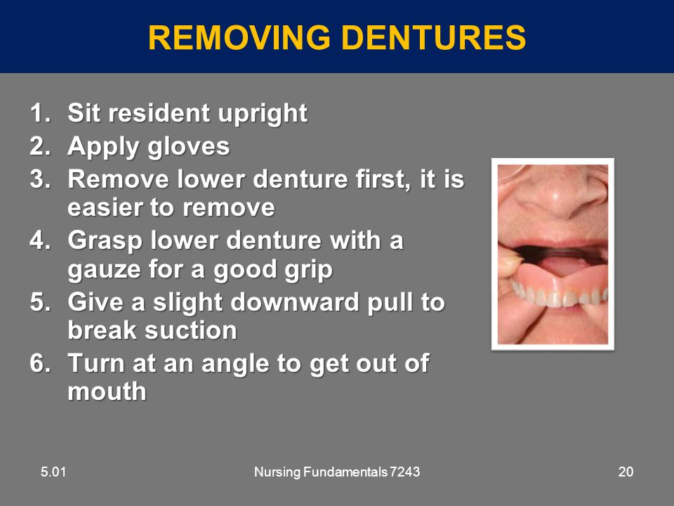 Removing Dentures Sit resident upright Apply gloves
