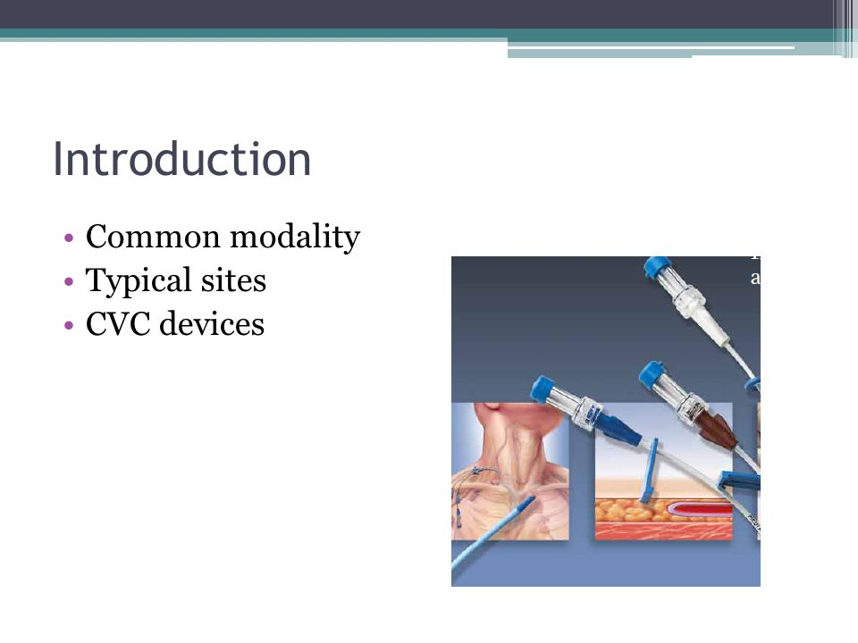 Introduction Common modality Typical sites CVC devices