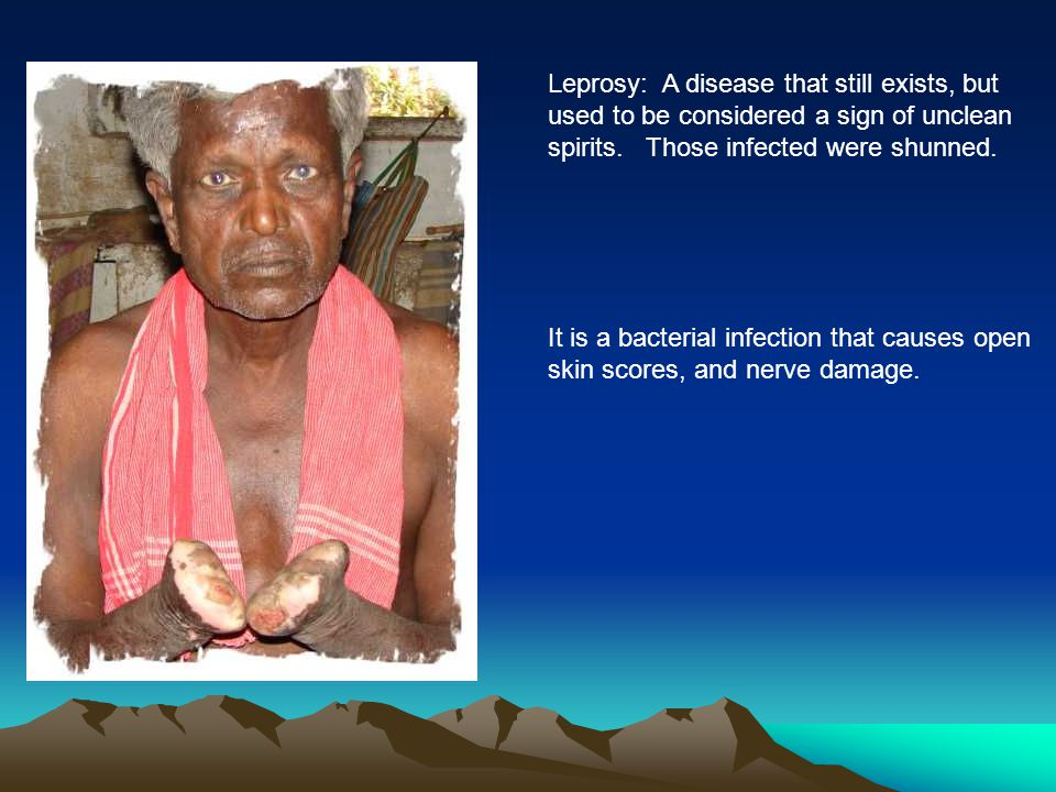 Leprosy: A disease that still exists, but
