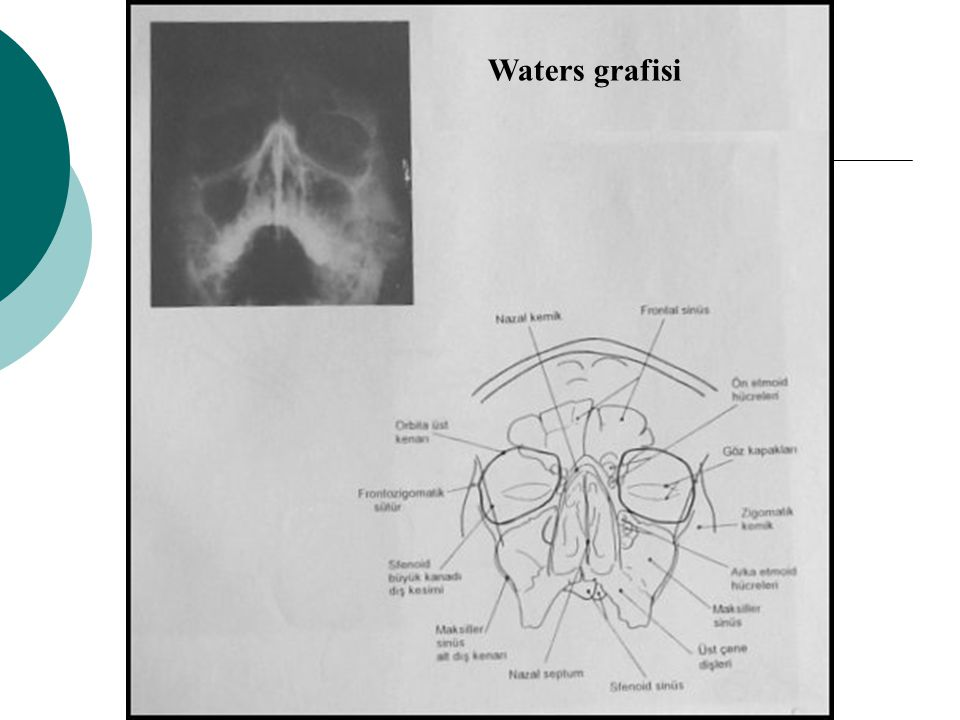 Waters grafisi