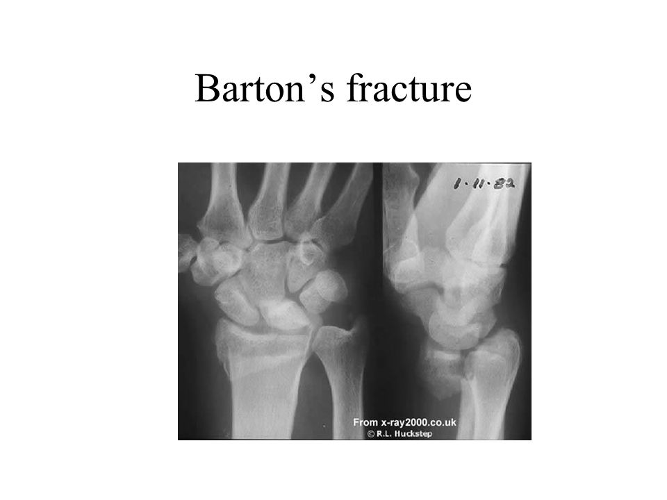 Barton's fracture Like Smith I.e fracture of distal radius with displacement towards the palm, but also fragments displaced proximally.