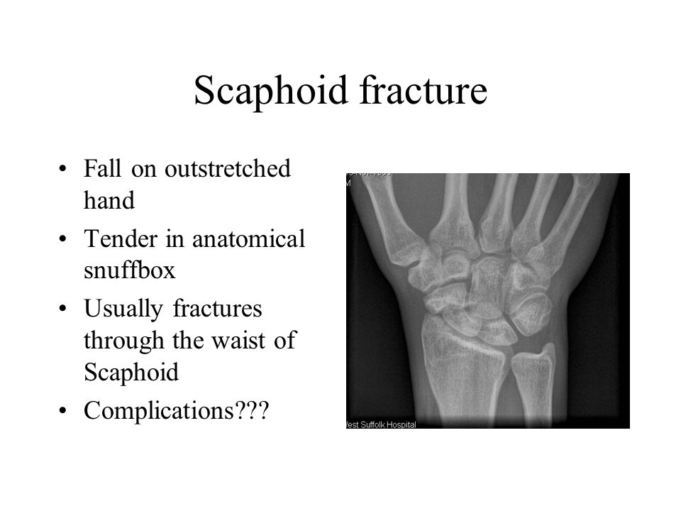 Scaphoid fracture Fall on outstretched hand
