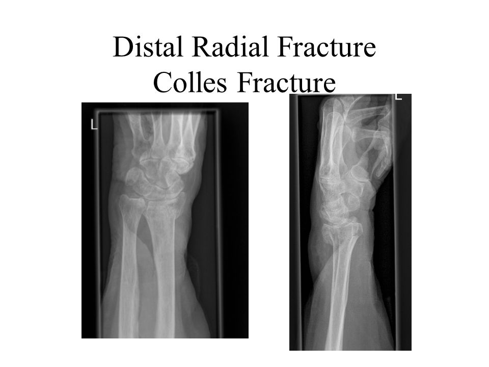 Distal Radial Fracture Colles Fracture