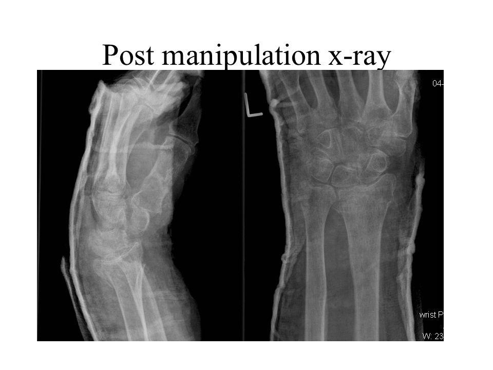 Post manipulation x-ray