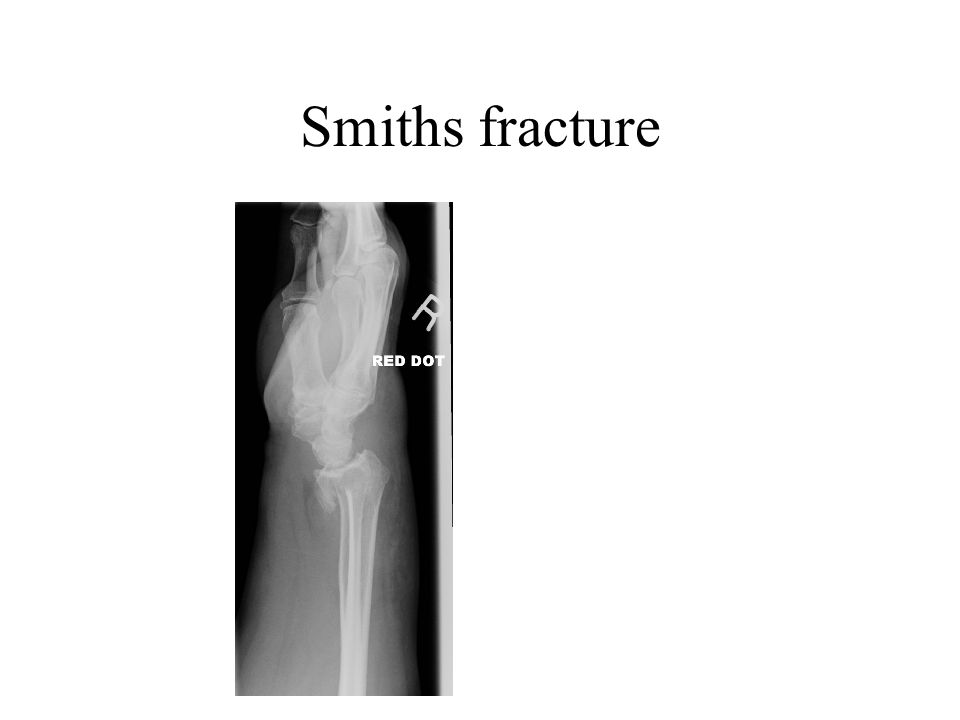 Smiths fracture Opposite to Colles I.e. distal radius is displaced towards the palm. Less common, but can be more serious.
