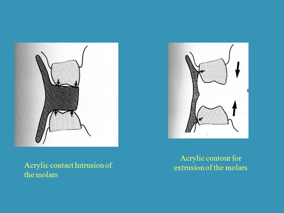Acrylic contour for extrusion of the molars