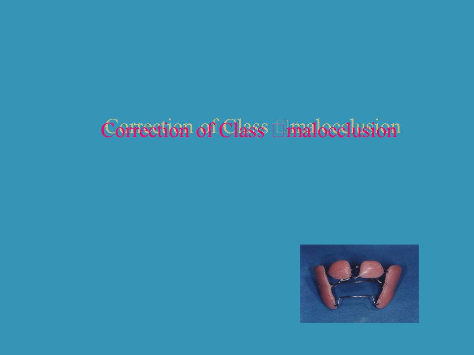 Correction of Class Ⅱmalocclusion