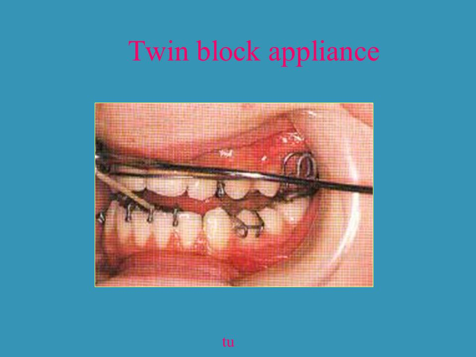 Twin block appliance tu