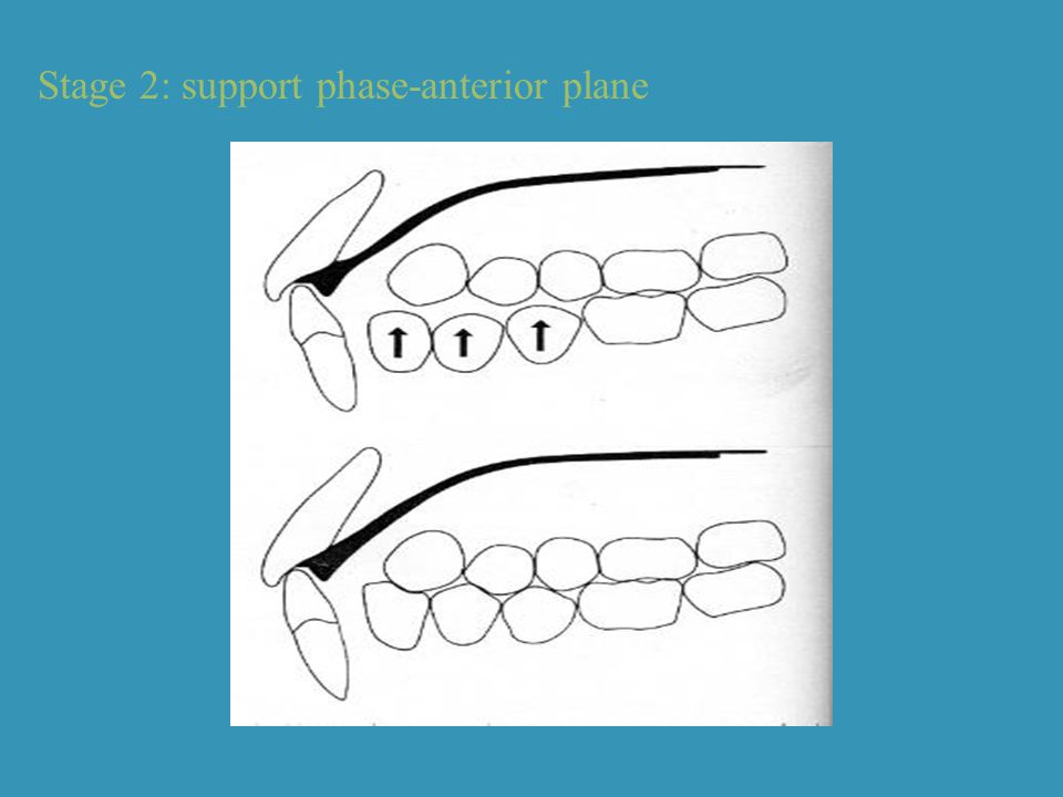 Stage 2: support phase-anterior plane