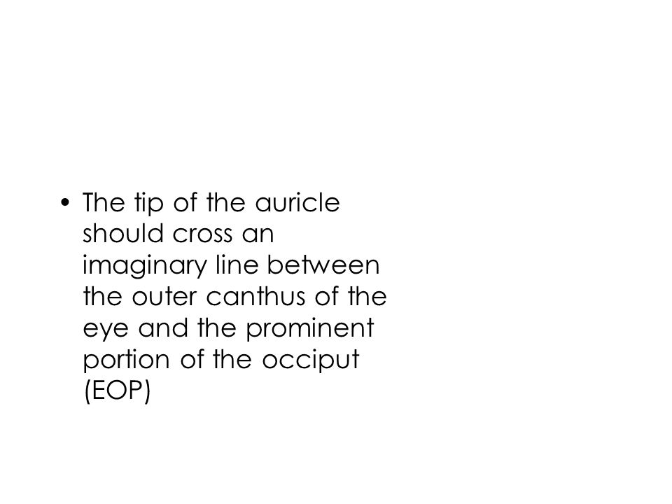 The tip of the auricle should cross an imaginary line between the outer canthus of the eye and the prominent portion of the occiput (EOP)
