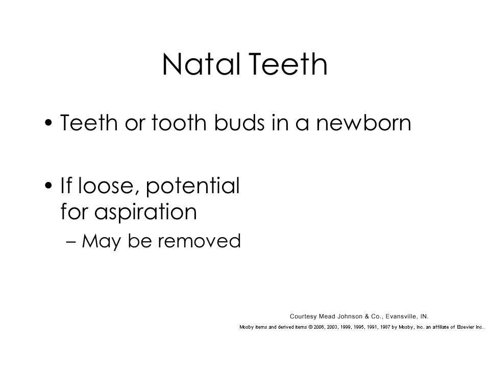 Natal Teeth Teeth or tooth buds in a newborn