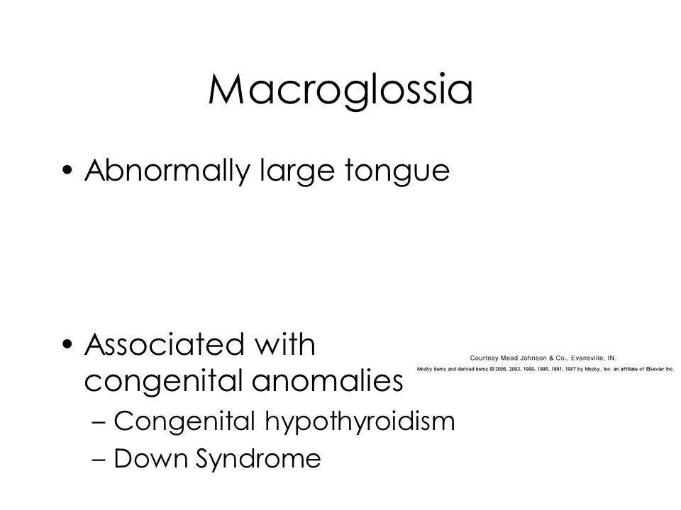 Macroglossia Abnormally large tongue