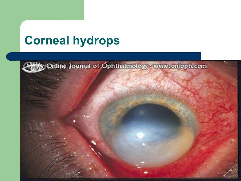 Corneal hydrops